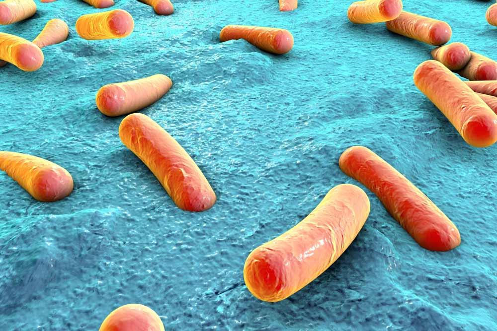 Prevención de Legionella